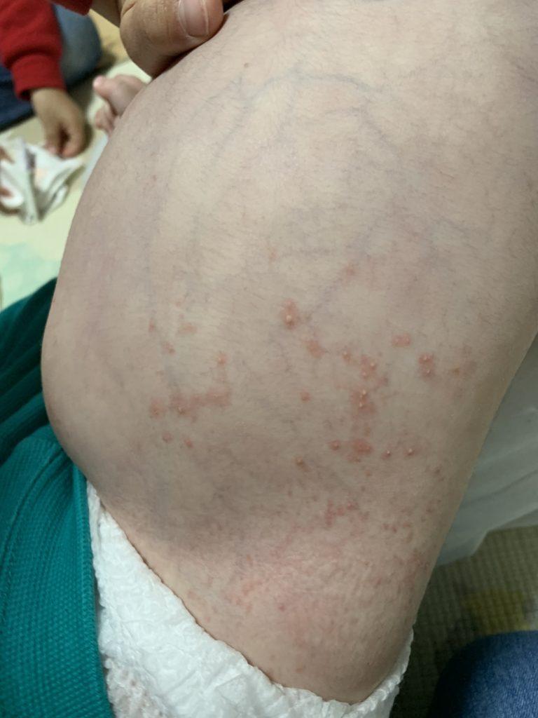 小児の膿疱性乾癬_写真